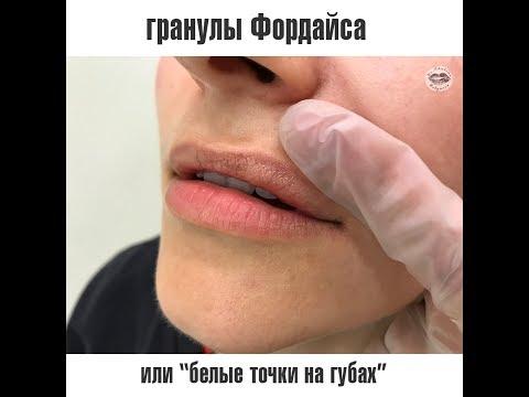 Отбеливающий крем применения