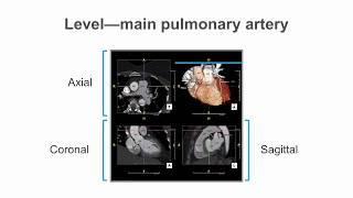 How to identify normal heart structures on a cardiac CT scan.