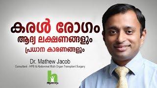 കരൾ രോഗത്തിന്റെ ഈ ലക്ഷണങ്ങൾ സൂക്ഷിക്കുക   Liver Disease Malayalam Health Tips