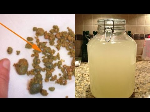 Look Your Kidneys Stones Coming Out Almost Everyday With This Amazing Home Remedy!