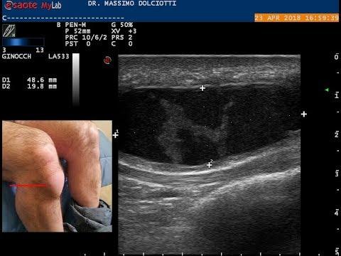 Spalla tendinite articolazione
