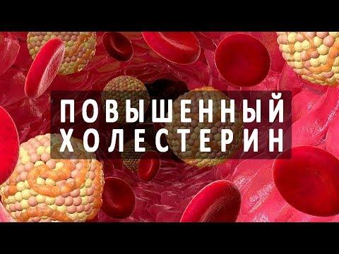 Обострение хронического гепатита с симптомы