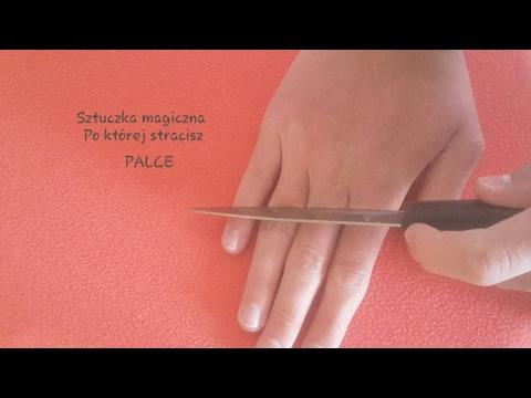Jak usunąć stłuczki pęcherze na palcach