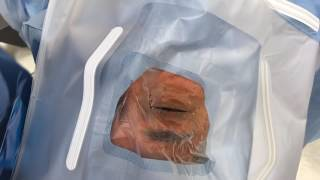 How to open the drape for cataract surgery 11-12-16