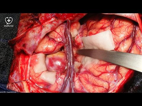 Hypertonie bei der Geburt