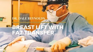 Dr. Reynolds - Breast Lift with Fat Transfer