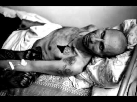 Печеночная колика наблюдается при хроническом гепатите
