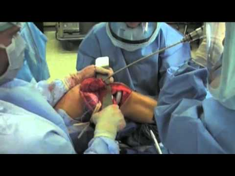 Radykalna resekcja guza dalszej nasady kości udowej i rekonstrukcja przy pomocy protezy