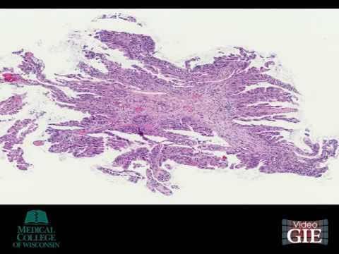 Hepatic cancer differentiation