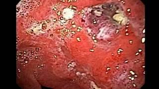 Endoscopia de Maltoma Gastrico (Linfoma)