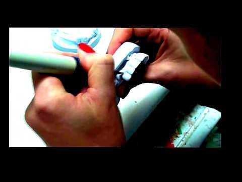 Ацеталовый протез. Стоматология. Лабораторные этапы изготовления