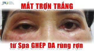 GIẬT MÌNH: Cắt Mắt GIẢ TRÂN, TRỢN NGƯỢC vì Spa GHÉP DA, Bác sĩ Tú Dung GIẢI CỨU