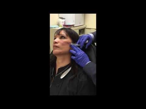 Anatomya ng facial pag-iipon at Mito sa mga pampaganda