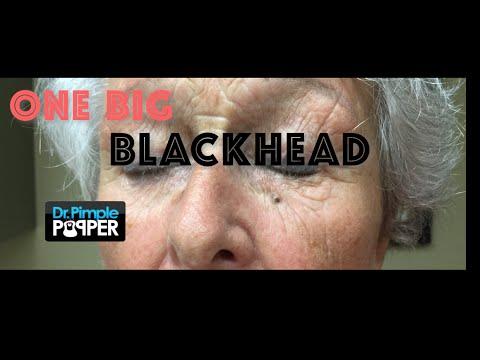 Enormous Under-Eye Blackhead!