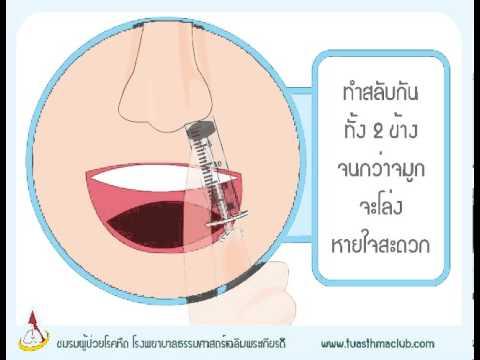 การเยียวยาชาวบ้านในการรักษาเส้นเลือดขอดที่ขา