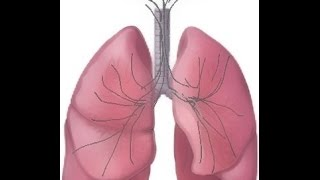BREATH SOUNDS- Stages of Fluid Overload. Pneumonia