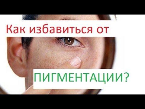 Пигментные пятна на лице способы удаления