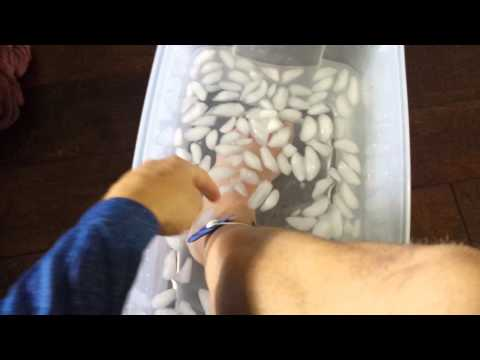 Video How To Recover From An Ankle Sprain Video 1- Fast Recovery-Quick Recovery