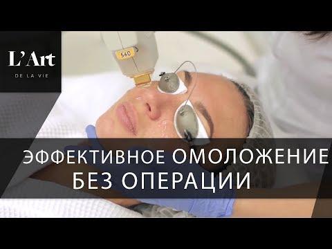 Операция убрать мешки над глазами