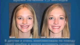 Исправление прикуса зубов без брекетов