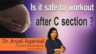 Hi9 | Is it safe to workout after C section? | Dr. Anjali Agarwal | Physiotherapist