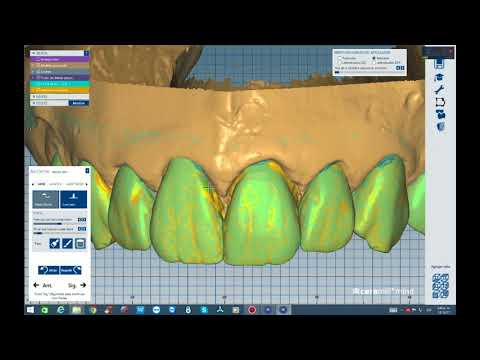 02  Integration with exocad's New Features Partial denture