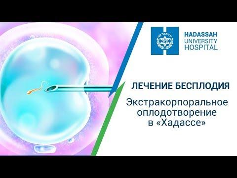 Лечение бесплодия в Израиле - центр ЭКО (экстрокорпоральное оплодотворение) МЦ 'Хадасса'