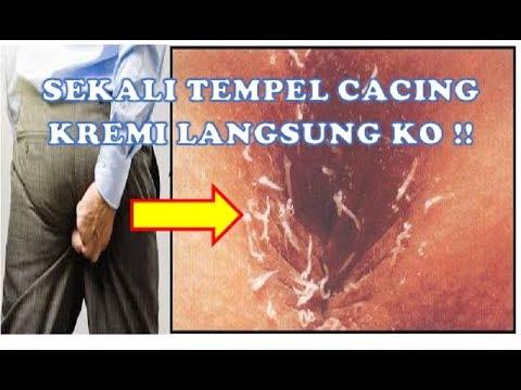 SEKALI OLES , RIBUAN CACING KREMI LANGSUNG K0IT !!