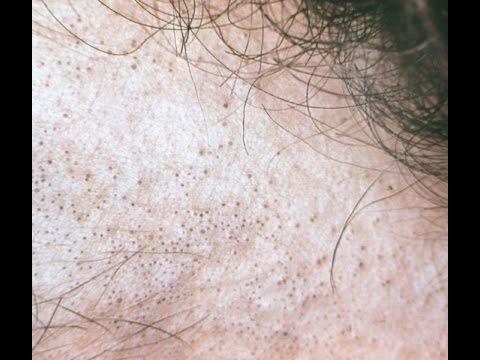 Крем для отбеливания кожи интимных местах