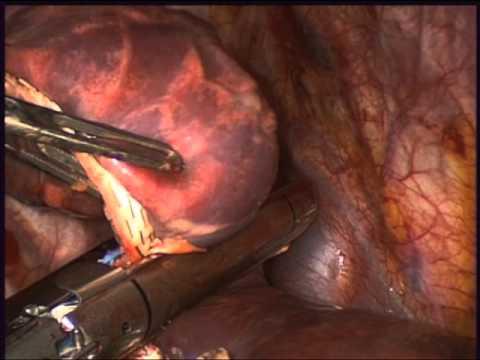Qual è lernia mediana e paramediana del rachide cervicale