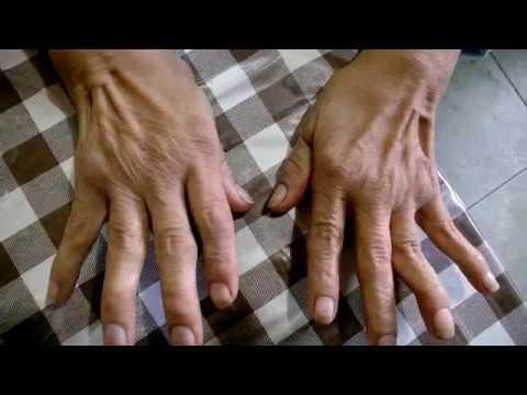 Susana 52, tiene artrosis y artritis + Fuma Cannabis