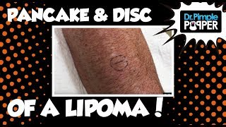 A Little Lipoma Pancake & Disc!