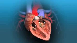 Aortic Valve ReplacementVideo In India