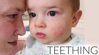 Signs of a Teething Baby