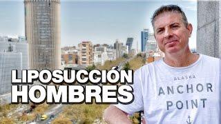 Liposucción Hombres | Clínicas Diego de León Madrid