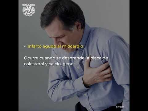 Renal y la hipertensión renal, la hipertensión arterial
