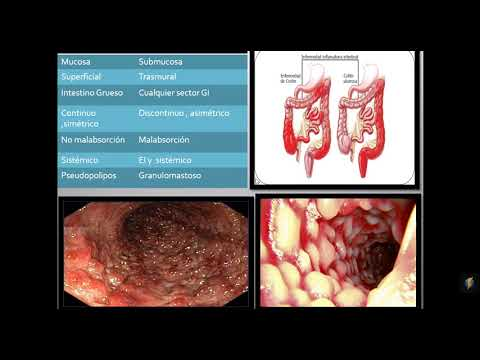 Diagnosticul și tratamentul clinicii de artrită și artroză