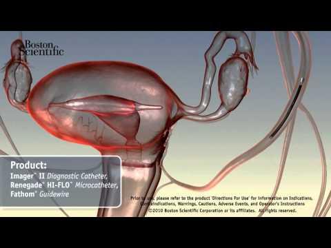 Die Teilthrombose des Auges