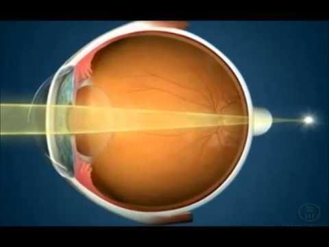 Cum să îmbunătățiți exercițiul de acuitate vizuală