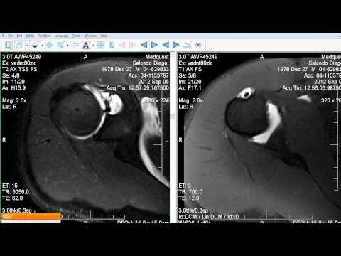 Causas de alta presión osteocondrosis