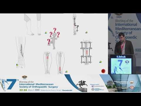 Selcuk E - Maffuci syndrome with tibia fracture: case report