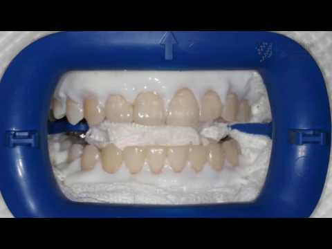 Does bleaching really harm your teeth? Here is how it works
