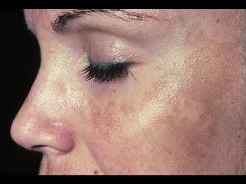 Cream pagpapaputi ng pigment spots