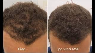 Mikropigmentace pro dlouhé vlasy - Vinci Hair Clinic - Praha