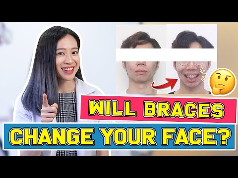 , title : 'Will Braces Change Your FACE? | #BraceYourself!🦷