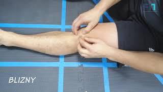 Mobilizacja blizny po artroskopii kolana – tydzień 2 – MT002