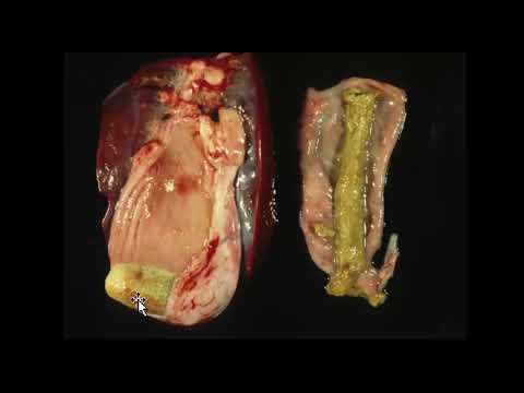 Cancer colon viande