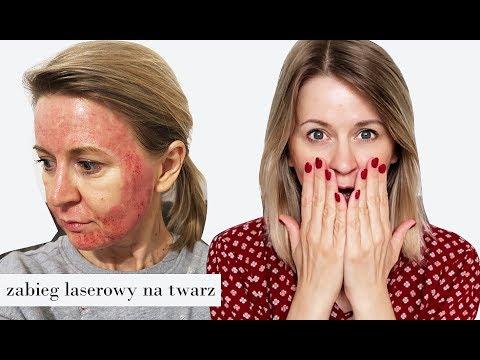 Leczeniu hemoroidów i szczeliny w czasie laktacji