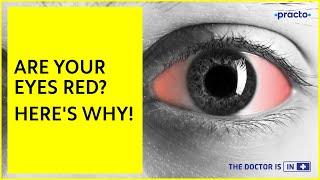 Redness of the Eyes: Causes & Symptoms   Iridocyclitis, Glaucoma & Conjunctivitis Symptoms    Practo