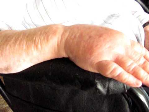 Dopo un flebektomiya il fianco allinterno di danni